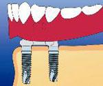 入れ歯を固定するときのイメージ
