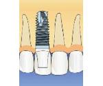 上顎前歯の症例イメージ