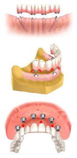 歯をインプラントに連結