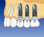 上顎奥歯の症例イメージ