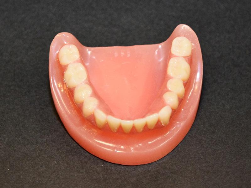 最小限のサイズの入れ歯を装着した写真01