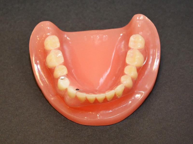 入れ歯を装着した写真03