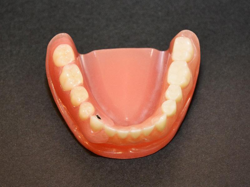 入れ歯を装着した写真04